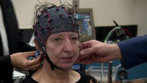Parkinson's results beyond researchers' wildest dreams