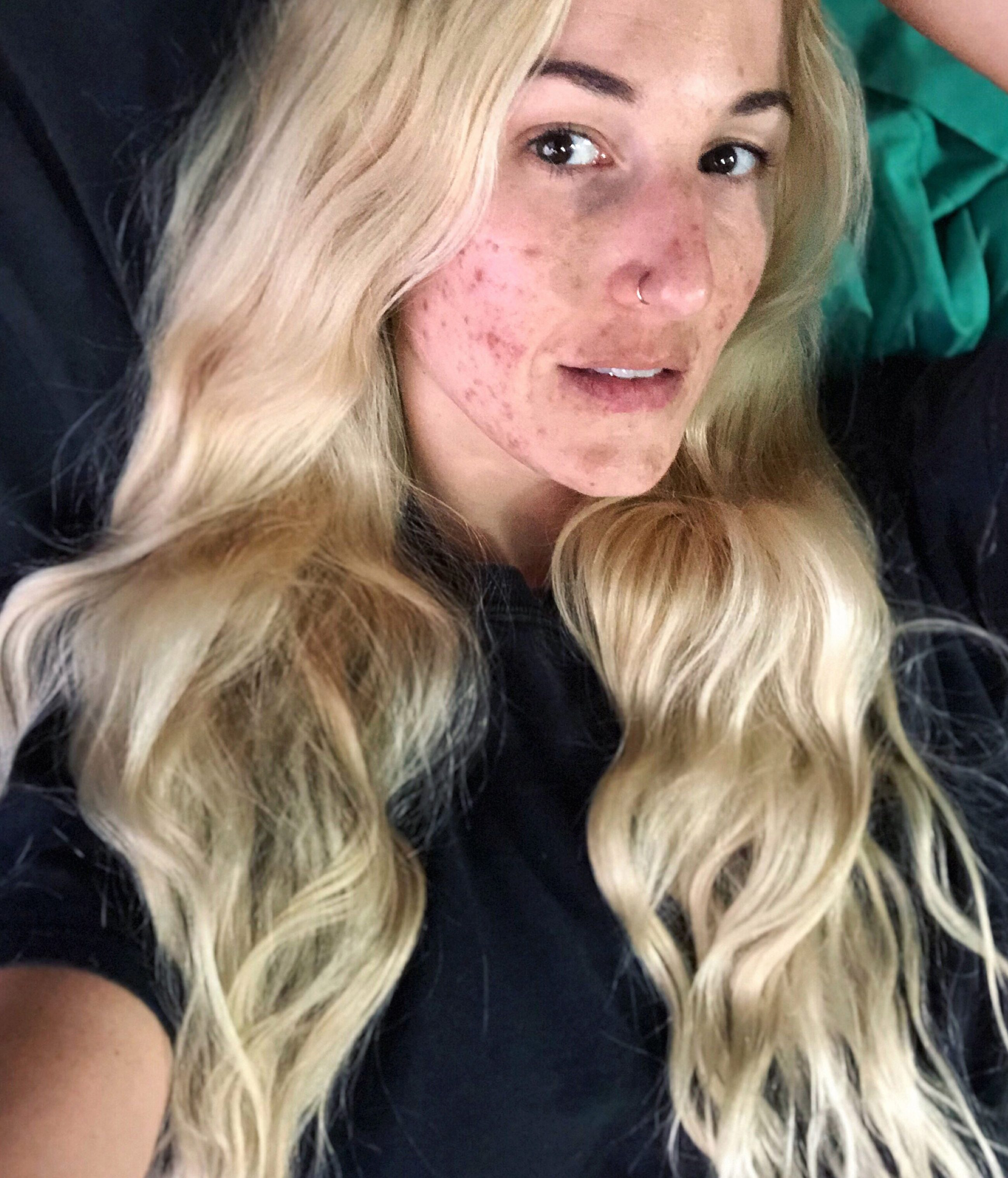 Kat developed cystic acne when she turned 30