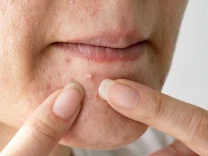 What to do about chin pimples