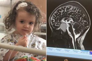 How an eye test saved my toddler's life after spotting signs of brain tumor
