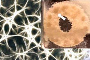 3D Microenvironments to Grow Brain Tumors in Lab