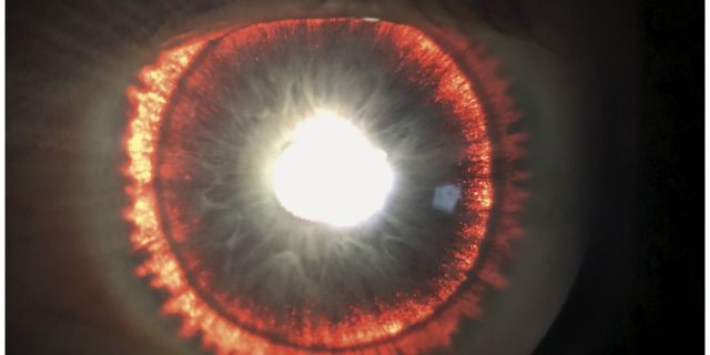 """The man's eye appeared to """"glow"""" because of a condition called pigment dispersion syndrome."""